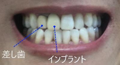 差し歯とインプラント
