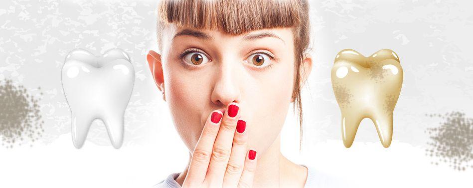 歯の黄ばみと白い歯