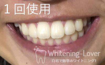 1回使用した歯の状態